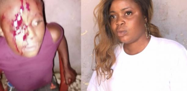 GUEDIAWAYE: Diatou attaquée par son ex-mari « Beut Bi La Yaak »
