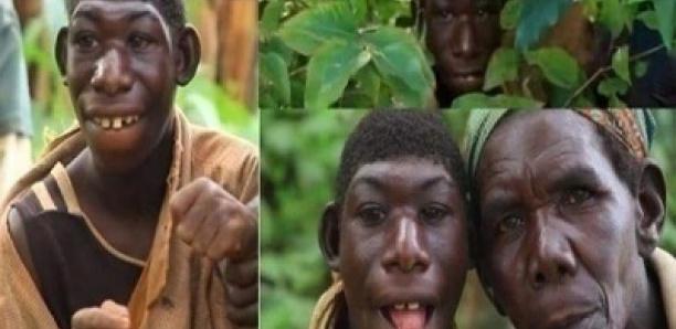 Bonne nouvelle pour Zanziman Ellie, le jeune garçon traité de singe