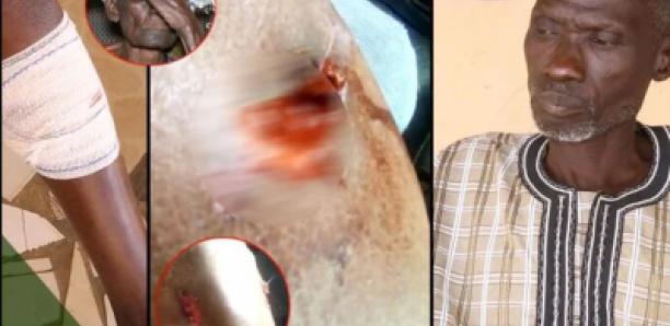 Diamniadio – Dougar : Un des blessés par balle raconte sa terreur