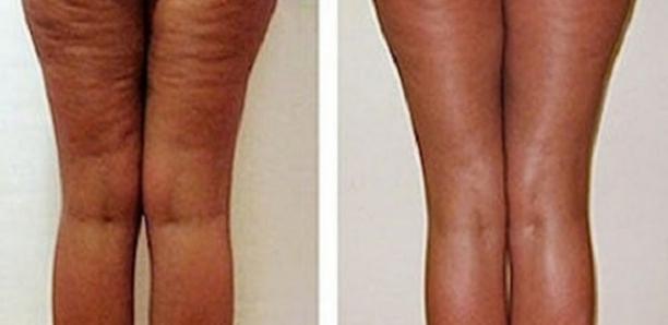 Comment se débarrasser de la cellulite adipeuse en ...