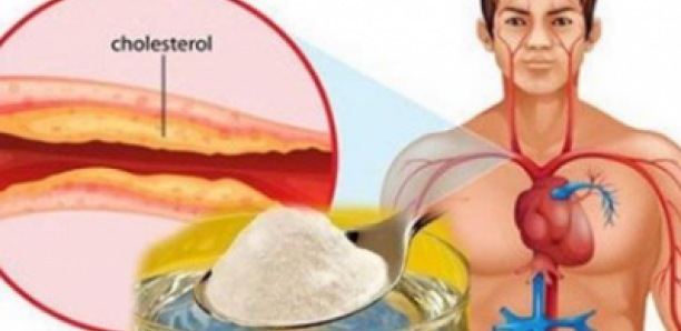 Le meilleur remède naturel contre le cholestérol et l..