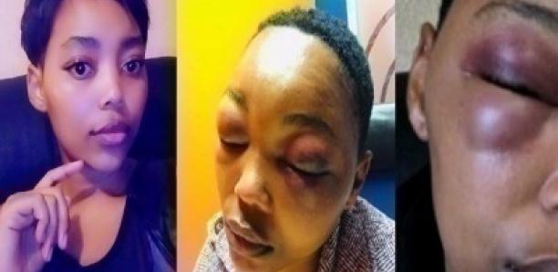 Une jeune femme de 21 ans battue par son petit ami, la police refuse de s'en mêler