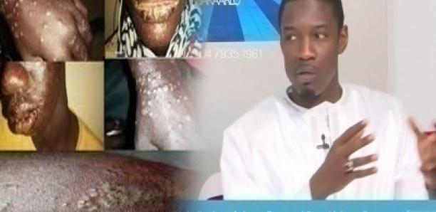 Pape Djibril Fall sur la « Maladie des pêcheur » : « Lithi Gueuna méti moy Etat bi… »